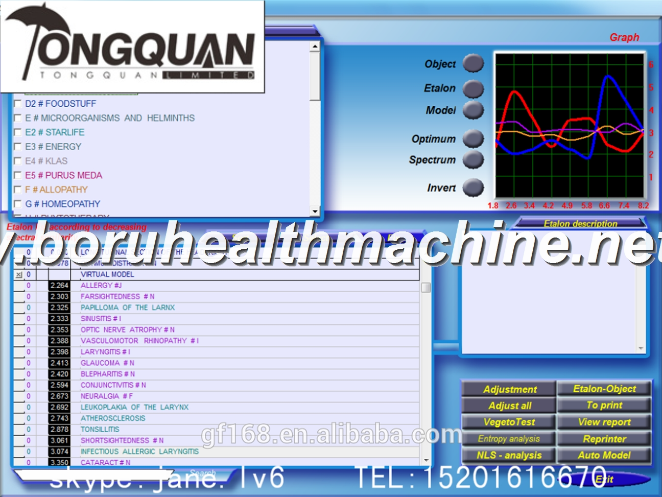 9d Nls/Cell Quantum Resonnant Capsule Health Analyzer (CE approved) hot sales six language